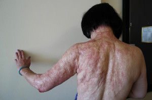 In this Sept. 27, 2015 photo, Kim Phuc shows the burn scars on her back and arms after laser treatments in Miami. Phuc was burned in the back and left arm by a napalm bomb in Vietnam more than 40 years ago. (AP Photo/Nick Ut)